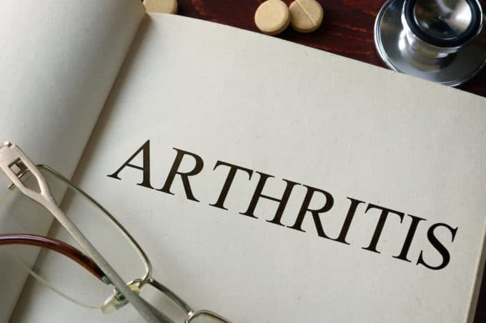 Treating Arthritis with Essential Oils