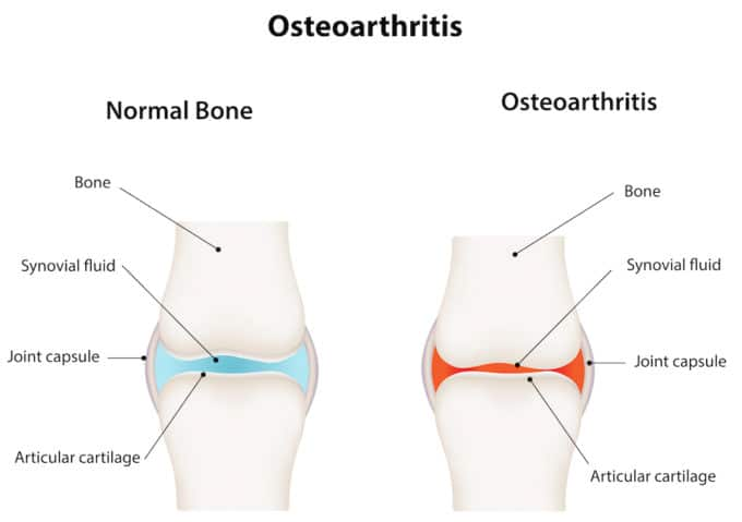 Photo of osteoarthritis - oils for arthritis.