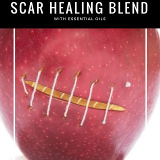 Scar Healing Blend with Essential Oils