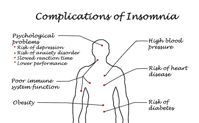 Graphic depicting all of the different possible complications of Insomnia.
